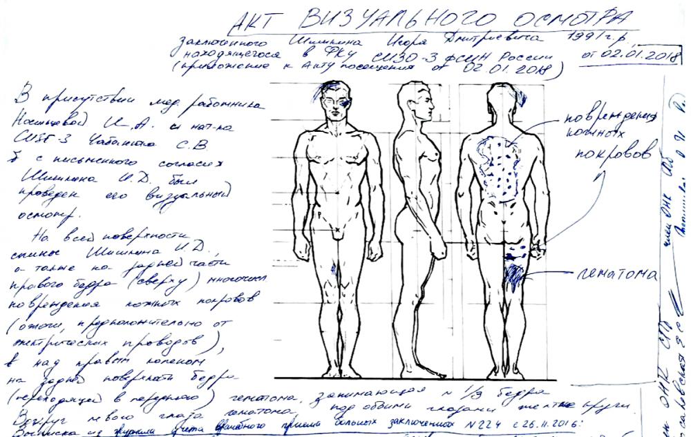 Акт визуального осмотра Игоря Шишкина. Источник изображения: заключение ОНК